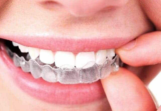 سيدة تستخدم التقويم الشفاف لتعديل الأسنان الأمامية