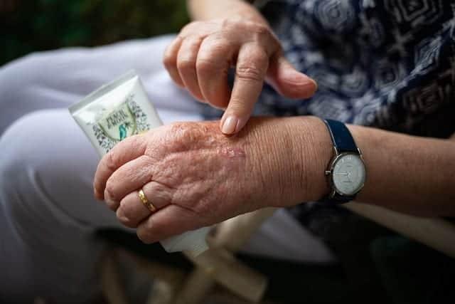 ترطيب البشرة هام للوقاية من اكزيما الجلد