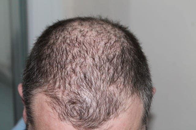 صورة رجل يعاني من الصلع الوراثي