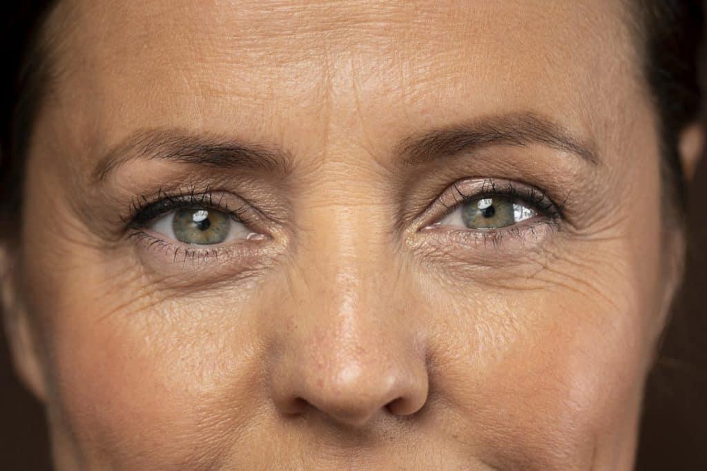 ما هي أشهر أماكن ظهور خطوط الوجه