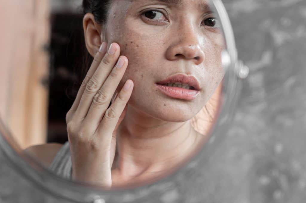 علاج تصبغات الجلد