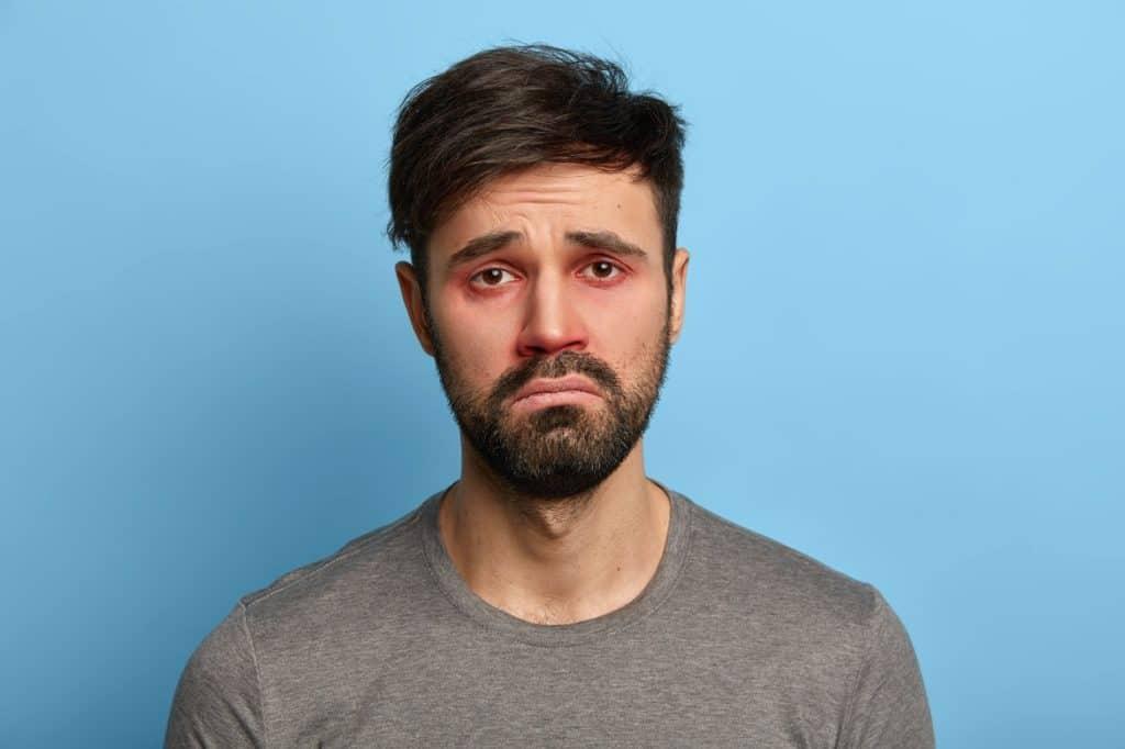 رجل يعاني من احمرار العين